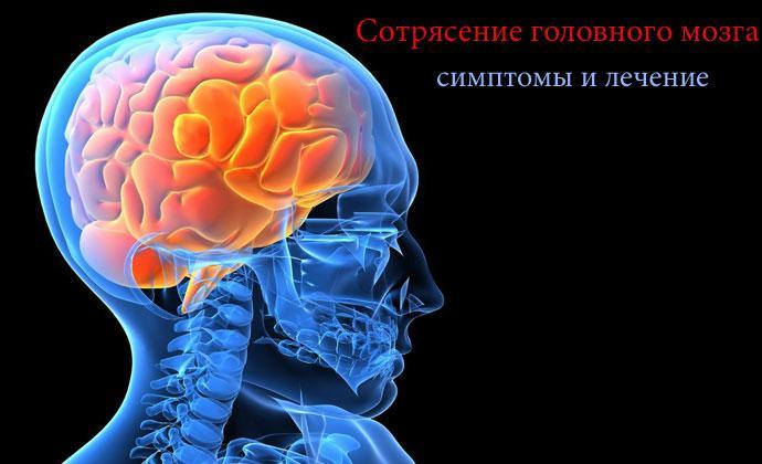 Симптомы сотрясение головного мозга