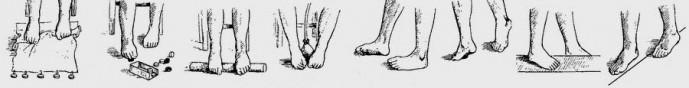Лечение плоскостопия у детей и взрослых