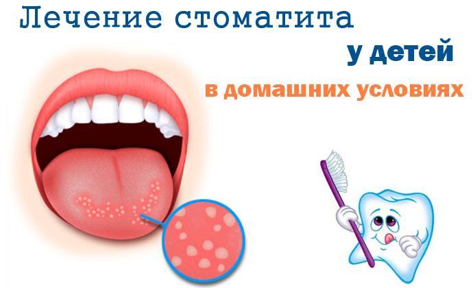 Сыпь на языке у ребенка и взрослого: причины и лечение