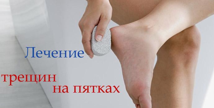 Если трескаются пятки как лечить в домашних