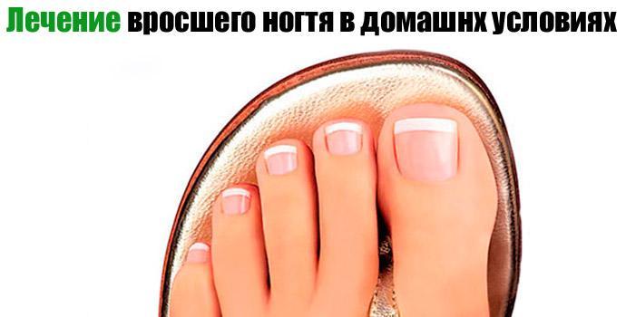 Грибок ногтей как дезинфицировать носки