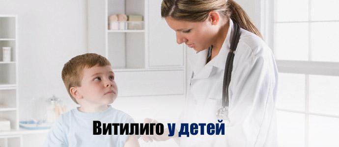 витилиго у детей