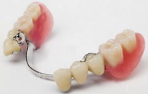 """фото """"Достоинства бюгельного зубного протеза"""""""