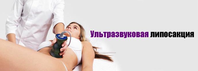 Ультразвуковая липосакция