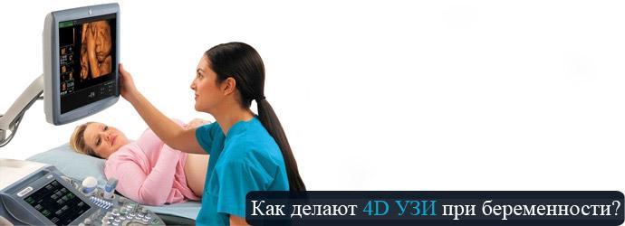 4d узи