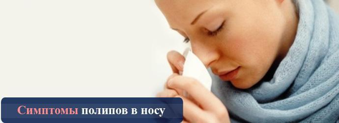 симптомы полипов носа
