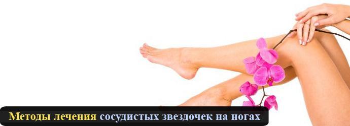Как лечить звездочку на ноге домашних условиях