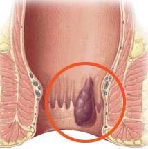 Геморрой внутренний симптомы