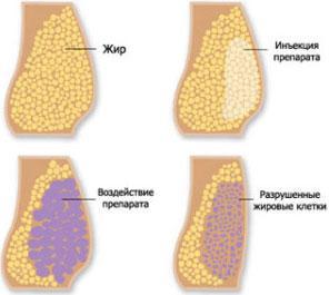 действие мезотерапии для похудения
