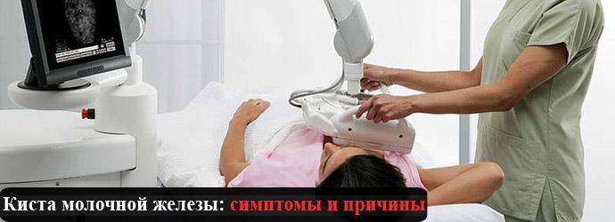 Симптомы кисты молочной железы