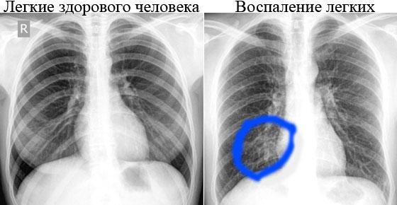 рентген здоровых легких и при воспалении