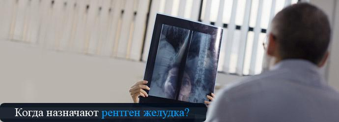 показания к рентгену желудка