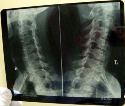 позвоночник на рентгене