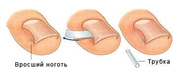 Что делать если ноготь врос в палец на ноге
