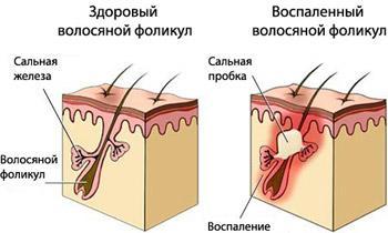 фоликул