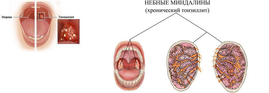 симптомы тонзиллита: нёбные миндалины