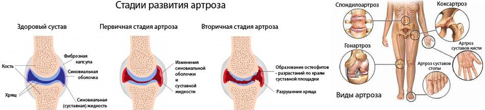 лучевые проявления дегенеративно-дистрофических поражений костно-суставной системы