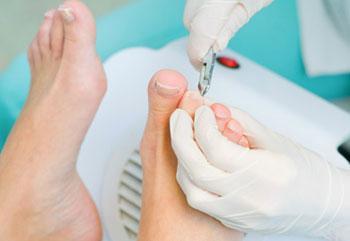 Как проводят операцию на вросший ноготь?
